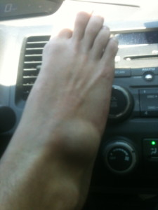 Smuggling a golf ball in my foot.